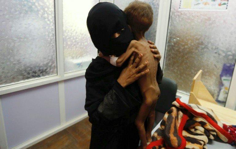 yemen-starving-child4-768x484
