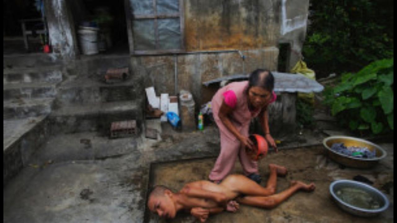 Malformazioni dovute all'agente arancio in Vietnam