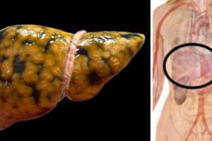 Sei modi in cui si danneggia il fegato, pur senza consumare alcol.